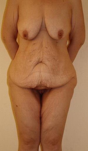До и после похудения фото: