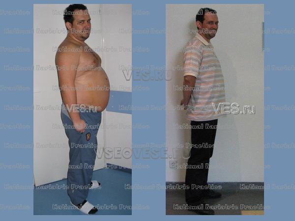 До и после фото: