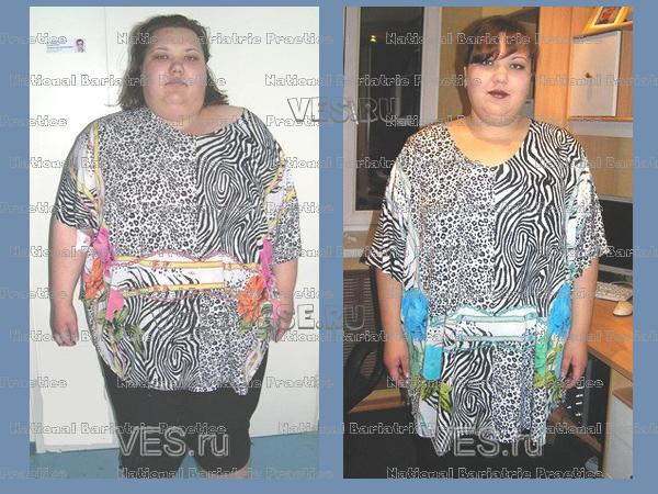 Резекция желудка диета