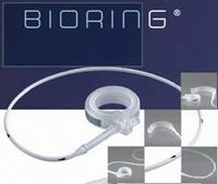 Желудочный бандаж BioringTM