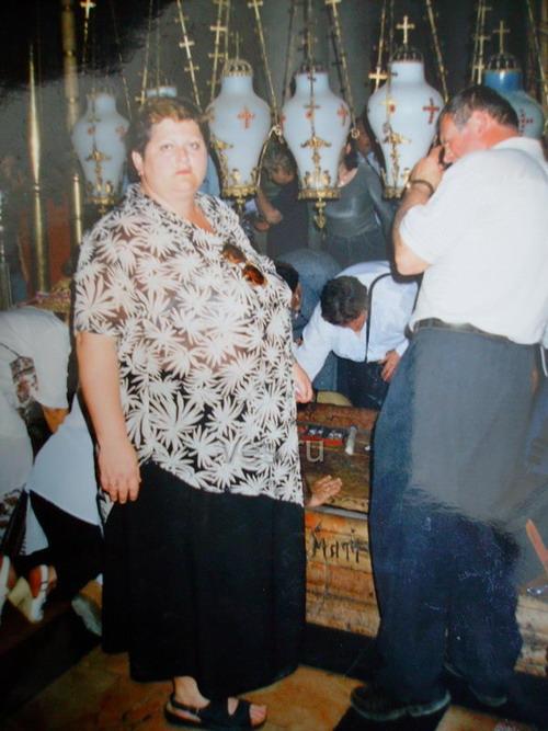 Желудочное шунтирование в Израиле - ДО операции