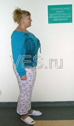 Лапароскопическое бандажирование желудка - снижение веса после операции - 30 кг.