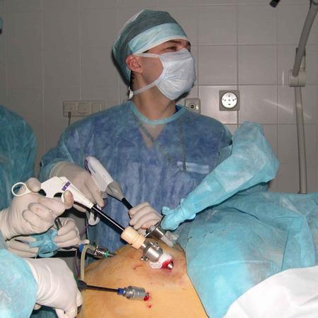 Лапароскопическая операция