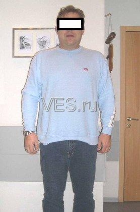 ФОТО ПАЦИЕНТА - декабрь 2006 - Лапароскопическое бандажирование желудка