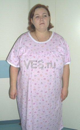 Лапароскопическое бандажирование желудка - ДО операции