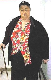 Этта Джеймс (Etta James) - вес 200 кг. - проблемы с суставами