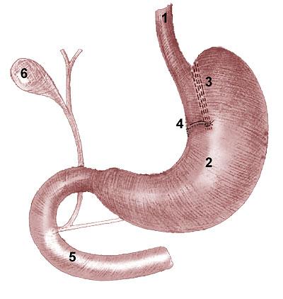 Операция Fabito (1981) – вертикальная гастропластика