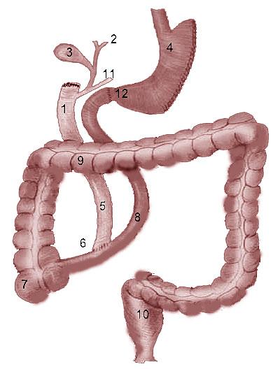 Операция Hess, Hess (1998)—билиопанкреатического шунтирования с выключением двенадцатиперстной кишки