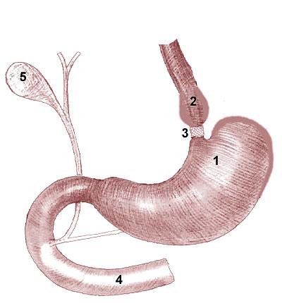 Операция Kolle (1982) - желудочное бандажирование