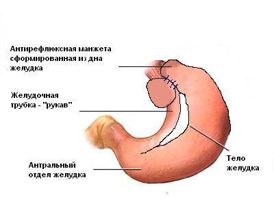 Результат операции (МАГ) - Лапароскопическая модифицированная антирефлюксная гастропластика (МАГ)