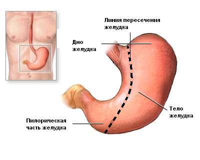 РУКАВНАЯ РЕЗЕКЦИЯ ЖЕЛУДКА - SLEEVE GASTRECTOMY- лапароскопическая вертикальная продленная эксцизионная гастропластика